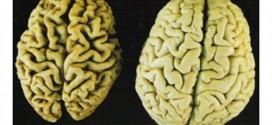 brain-alzheimers-650x451