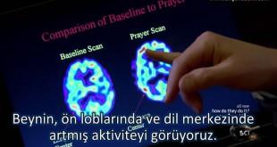 brain.on.pray